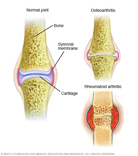 Rheumatoid Arthritis - Arthritis Care and Research Center