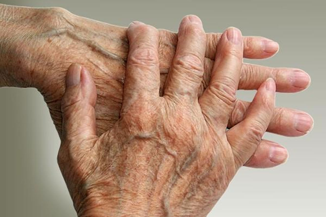 Rheumatoid Arthritis  Arthritis Care And Research Center. I Was In A Car Accident Power Of Attorney Irs. Solar Water Heater Austin Bmw X5 Lease Prices. Insurance Billing Software Safety & Security. General Liability Insurance Cost For Small Business. Los Angeles Tap Water Quality. Segmental Vitiligo Treatment Car Cash Loan. Criminal Justice Classes In College. Average Cost Of Hair Restoration