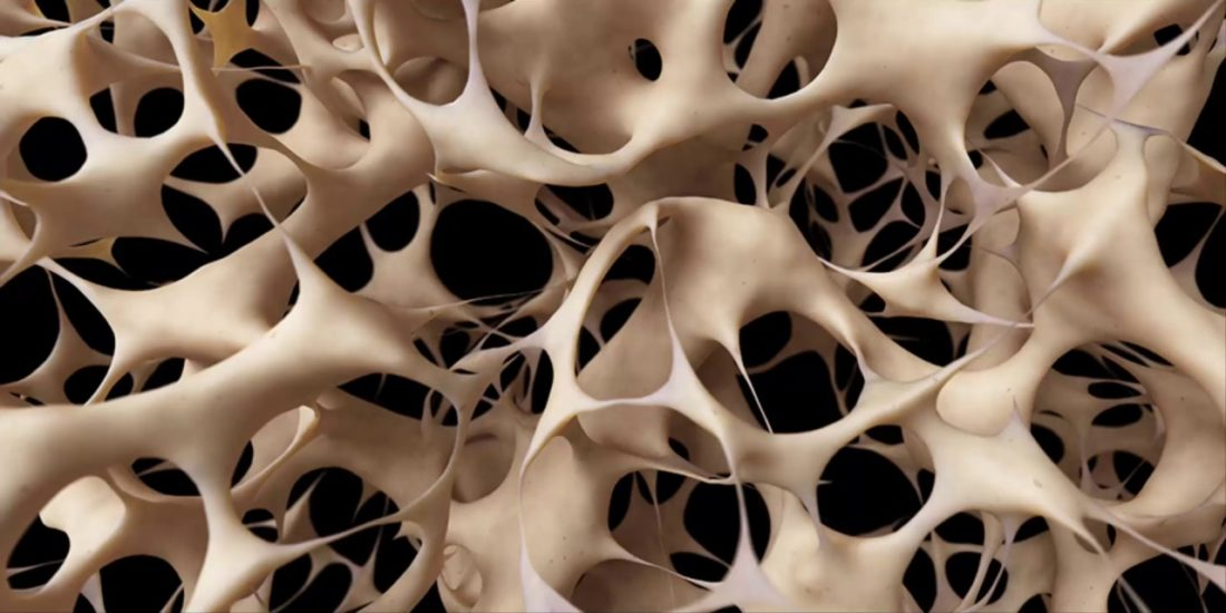How metal scaffolds enhance the bone healing process